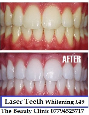 Laser Teeth Whitening Cheapest And Best Hair Amp Beauty Salon Fallowfield Manchester